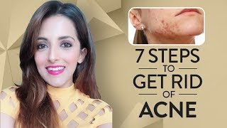 7 Steps TO GET CLEAR ACNE FREE SKIN/ How To Get Rid Of Pimples & Get CLEAR, GLOWING SKIN + GIVEAWAY