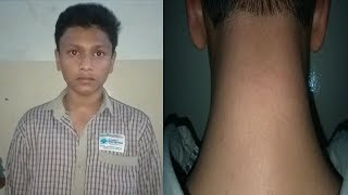 School Sir Beats Student   Case Booked Against Sir   Sri Chandra Quest High School   @ SACH NEWS  