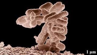 Nina Pham First American Contracts Ebola Virus