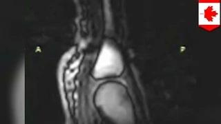 Knuckle cracking: What happens when you crack your knuckles revealed by MRI video
