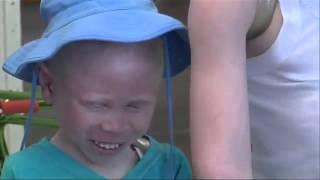 Children Attacked for Albinism Get New Arms