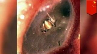 Spider inside ear: woman thinks she's possessed by spirits, finds spider in ear