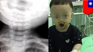 10 month old baby left alone by parents swallows safety pin, nearly dies - TomoNews