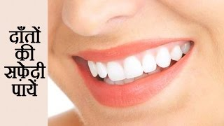 Whiten Your Teeth At Home Carbon Coco Teeth Whitening Kit Review