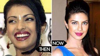 Bollywood celebs Unbelievable Photos THEN & NOW