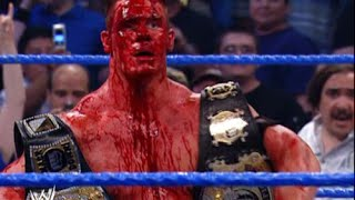 10 Bloodiest Matches In WWE history ( 10 of the most violent/'Brutal  in the history of WWE)
