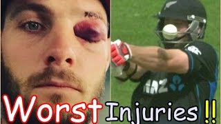 WORST CRICKET INJURIES IN CRICKET HISTORY EVER !