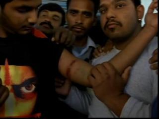 पठानकोट आतंकवादी हमला : जब युवक की बाजू को चीरती हुई निकल गई गोली