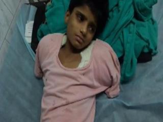 बिजली विभाग की लापरवाही से काटने पड़े 10 वर्षीय बच्ची के दोनों हाथ