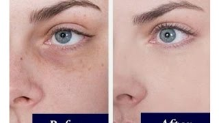 How to hide/cover under eye hollowness and dark circle and look younger instantly without botox.