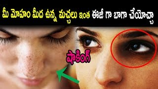 Wow Very Easy way to remove black marks in your face | Health Tips | Natural Health & Cure | Health