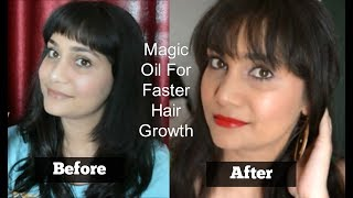 100% Result | How to Grow hair Fast at home | Stop Hairfall Completely Naturally | Nidhi Katiyar
