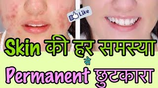 How to Remove Pimples PERMANENTLY at home - Acne Treatment for Glowing Clear Skin