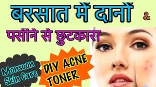 DIY Toner for Acne & Scars | Natural Skin Care Toner - 100% Effective | JSuper Kaur