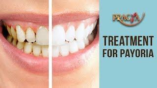 Best Treatment For Payoria- Dr. Umang Nayar (Dental Surgeon)