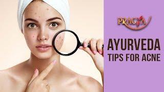 Best Ayurvedic Tips For Acne | Dr. Vibha Sharma (Ayurveda & Panchkarma Expert)
