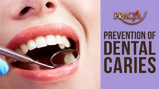 Prevention Of Dental Caries (Cavities)- Dr. Payal Nayar (Dental Surgeon)