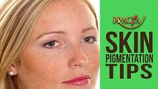 Skin Pigmentation Tips | Dr. Shehla Aggarwal (Dermatologist)