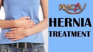 How To Cure Hernia   Dr. Manorama Singh (Gynecologist)