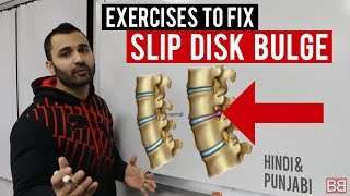 Fix SLIP DISC BULGE Back Pain at Home! (Hindi / Punjabi)