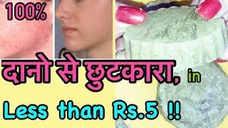DIY Natural Acne Treatment - Remove Pimples Permanently | JSuper Kaur