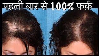 DIY Hair Milk - How to Stop Hair Fall - Grow Long Thick Hair | 100% Natural Hair Loss Remedy