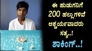 ಈ ಹುಡುಗನಿಗೆ 200 ಹಲ್ಲುಗಳಿವೆ ಶಾಕಿಂಗ್ |  boy have 200 teethes | Top Kannada TV