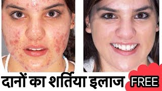 How To Remove Pimples, Dark Spots overnight | Acne Treatment Home Remedy | JSuper Kaur