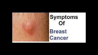 breast cancer के symptoms क्या होते है || जानने के लिए देखे वीडियो || KKD NEWS