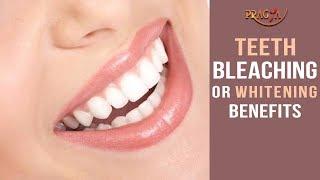 Teeth Bleaching or Whitening Benefits | Must Watch