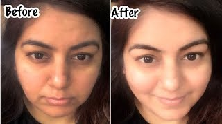 Skin Whitening in 10 min - 100% Result - Get Spotless Fair Skin with Kaolin Clay | JSuper Kaur