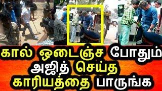 கால் உடைந்த நிலையிலும் அஜித் செஞ்சத பாருங்க|Ajith Sir Latest News|Ajith Sir Accident