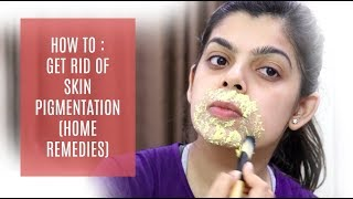 HOW TO : GET RID OF SKIN PIGMENTATION | HOME REMEDIES