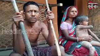 Father & Daughter Of Patna Suffered With Critical Disease