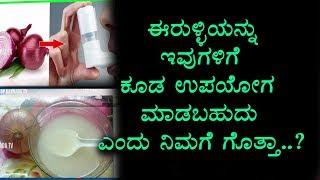 ಈರುಳ್ಳಿ ಇಷ್ಟು ಗುಣಗಳಿವೆ ಎಂದು ನಿಮಗೆ ಗೊತ್ತಾ | Health benefits of Onion | Health Videos Kannada
