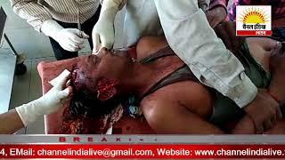 टाइगर का हमला तीन घायल #Channel India Live