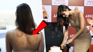 Disha Patani Spotted With Marks On Her Back At A Clinic Launch