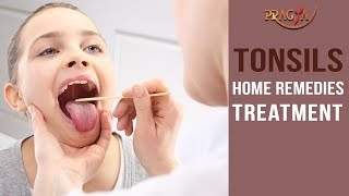 Tonsils Home Remedies Treatment | Must Watch