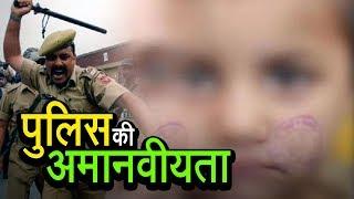 Inhuman Police Behaviour | पुलिस की अमानवीयता | अशोक वानखेड़े | व्हिसलब्लोवर न्यूज़ इंडिया