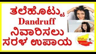 how to remove dandruff naturally. 8 best home remedies for dandraff control..kannada sanjeevani.