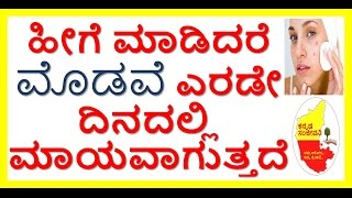 How to remove Pimples fast..Get rid of Pimples and Acne within two days..Kannada Sanjeevani.
