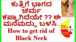 How to get rid of Black Dark Neck...Kannada Sanjeevani..