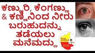 Home Remedies for Burning and Watering Eyes in Kannada | Eye pain treatment | Kannada Sanjeevani