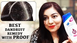 How To Get Rid Of Dandruff with PROOF | Head & Shoulders 2 in 1 Shampoo + Conditioner | JSuper Kaur