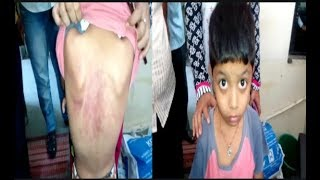 Principal Dangerously Beats The Small Student Of Second Class In Neharu Children School , Hyd.
