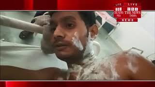 [ Fatehpur ] फतेहपुर  में बटवारे के विवाद में भाई ने भाई के ऊपर डाला तेजाब / THE NEWS INDIA