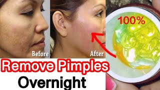 How to Remove Pimples, Acne Marks, Acne Pits in 1 day | Natural Remedy for Pimples #JSuperkaur