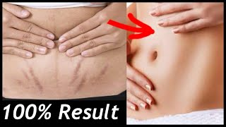 How to Remove Stretch Marks FAST | Reduce Acne Scars in 3 days | JSuper kaur