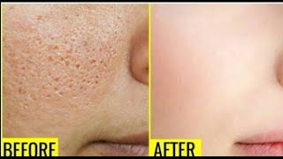 How to get rid of Large Open Pores 100% Natural remedy | JSuper kaur