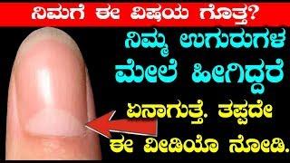 ನಿಮ್ಮ ಉಗುರುಗಳ ಮೇಲೆ ಹೀಗಿದ್ದರೆ ಏನಾಗುತ್ತೆ ತಪ್ಪದೇ ಈ ವೀಡಿಯೊ ನೋಡಿ | Facts behind Thumb finger nail